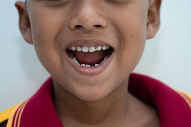 Mały chłopiec z uśmiechem złamane zęby