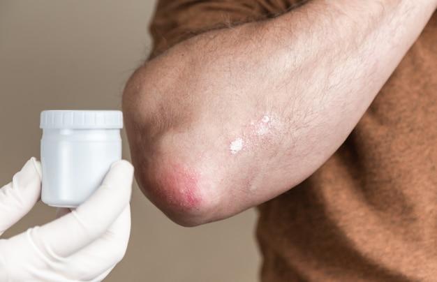 Maść na łuszczycę. dermatolog w rękawiczkach nakłada maść leczniczą na zmienioną chorobowo skórę pacjenta z łuszczycą. leczenie przewlekłych wyprysków skórnych, zapalenia skóry