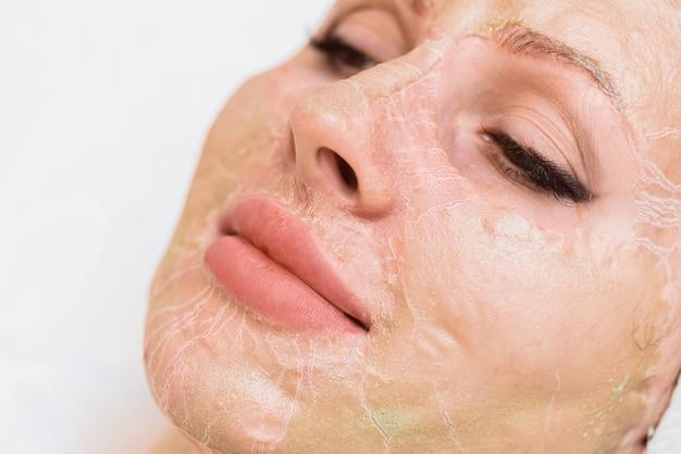 Maska enzymatyczna w procesie suszenia na zbliżeniu twarzy kobiety.