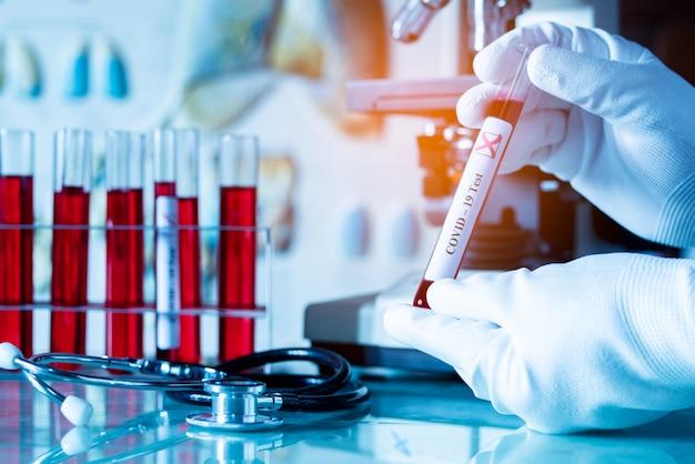 Medycyna, naukowiec lub lekarz trzymający probówkę z krwią na wynik testu na obecność koronawirusa covid-19 lub ncov