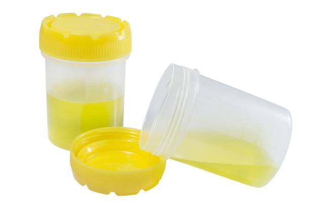 Medyczne pojemniki z żółtymi nakrętkami do analizy medycznej na białym tle