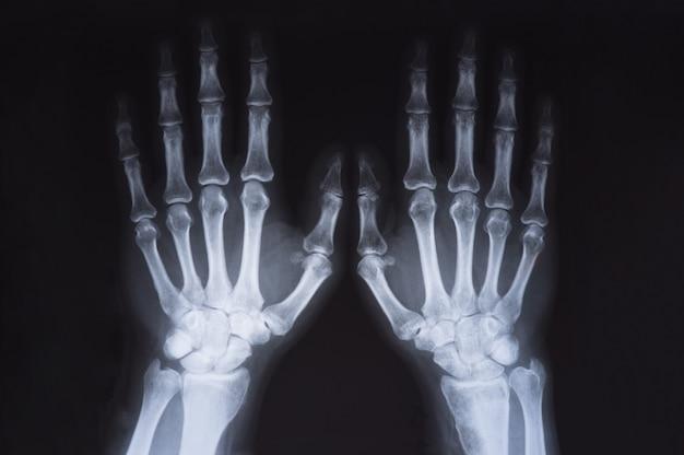 Medyczne x ray ręce obrazu