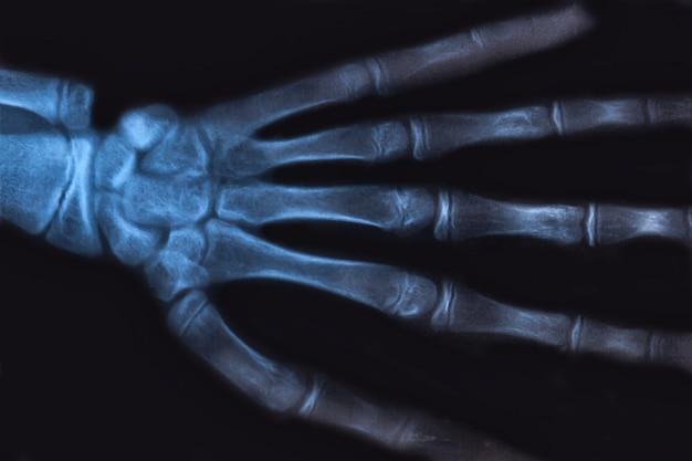 Medyczne zdjęcie rentgenowskie ludzkiej dłoni