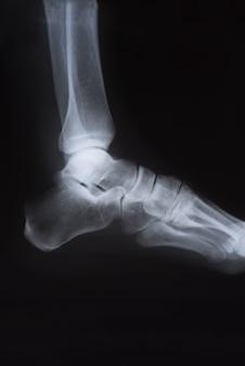 Medyczne zdjęcie rentgenowskie stopy