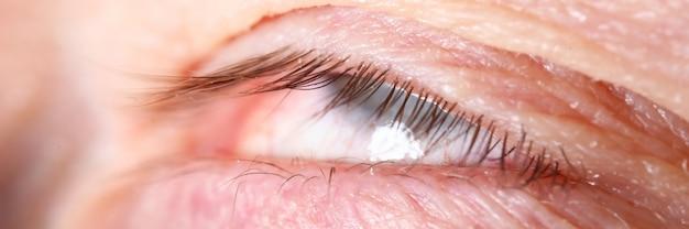 Męskie rzęsy ekstremalne zbliżenie z przewróconymi oczami