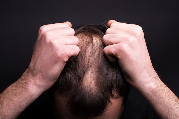 Mężczyzna chwyta się za włosy. głowa z łysieniem. problem wzrostu włosów na głowie.