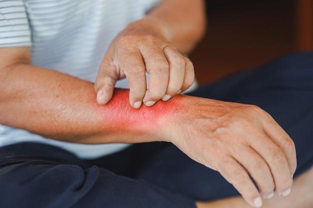 Mężczyzna drapał się po ramieniu z czerwonym pęcherzem z powodu reakcji alergicznej lub ukąszenia owada.
