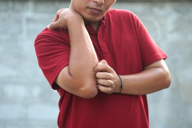 Mężczyzna drapiący ramię od swędzenia na jasnoszarym tle