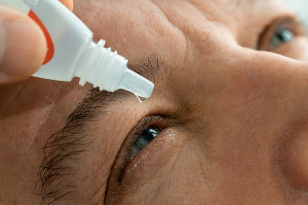 Mężczyzna nakłada krople do oczu przed założeniem soczewek kontaktowych.