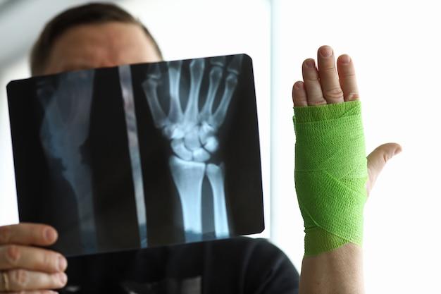 Mężczyzna pacjenta trzymać w ręku tomografii komputerowej jego złamanej ręki na wizytę u lekarza