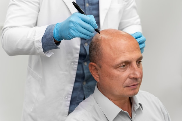 Mężczyzna przechodzący proces ekstrakcji jednostek pęcherzykowych