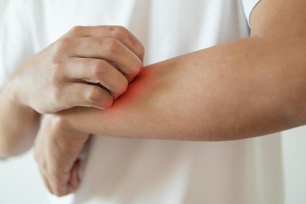 Mężczyzna swędzący i drapiący się po ramieniu od swędzącego, suchego zapalenia skóry z egzemą
