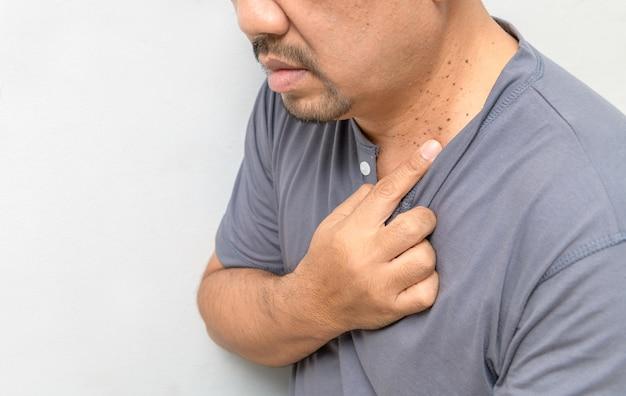 Mężczyzna w średnim wieku wskazał palcem na skin tags lub acrochordon na szyi na białej ścianie. problemy skórne osób starszych