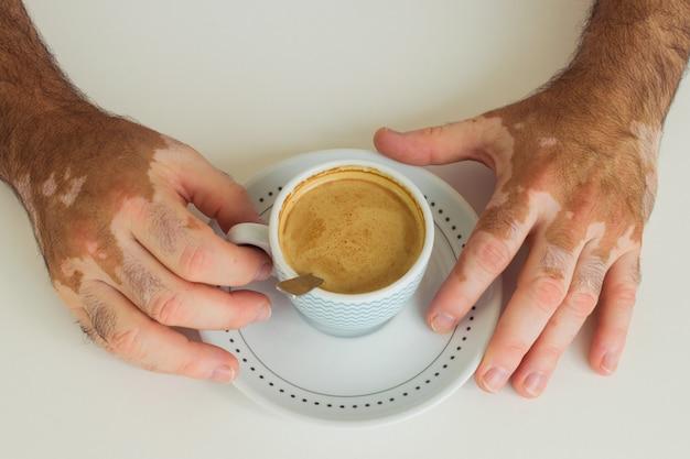 Mężczyzna z bielactwem trzyma filiżankę kawy
