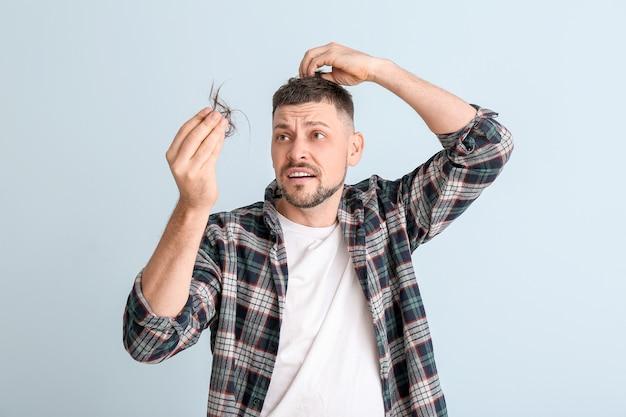Mężczyzna z problemem wypadania włosów na kolor