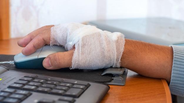 Mężczyzna z zabandażowaną ręką pracuje przy komputerze