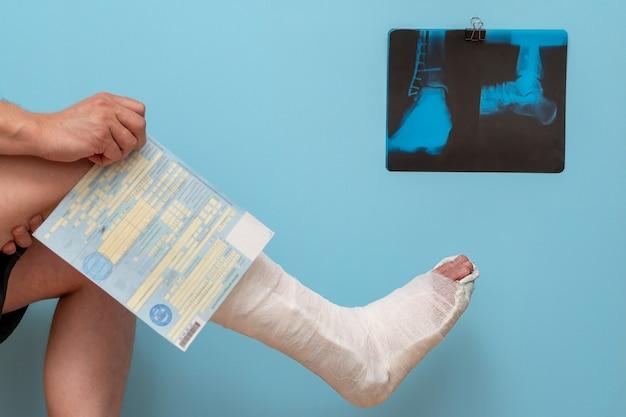 Mężczyzna ze złamaną nogą trzyma w rękach zwolnienie lekarskie w szpitalu.