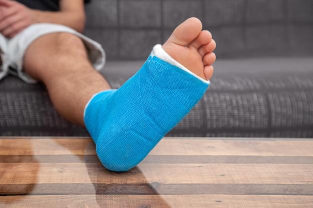 Mężczyzna ze złamaną nogą w gipsie na kanapie w domu. pojęcie kontuzji sportowej.