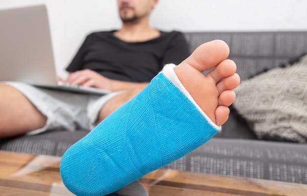 Mężczyzna ze złamaną nogą w gipsie, pracujący na laptopie na kanapie w domu.