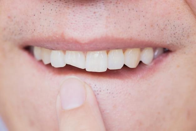 Mężczyzna zepsute zęby uszkodzone pęknięty przedni ząb potrzebują dentysty naprawić i naprawić.