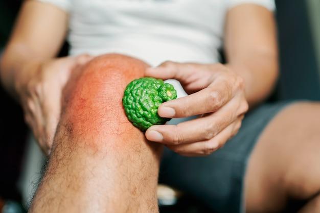 Mężczyźni z bólem kolana używają ziół bergamotki w celu złagodzenia.