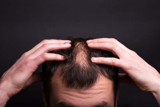 Mężczyźni z łysą głową na czarnej ścianie z bliska.