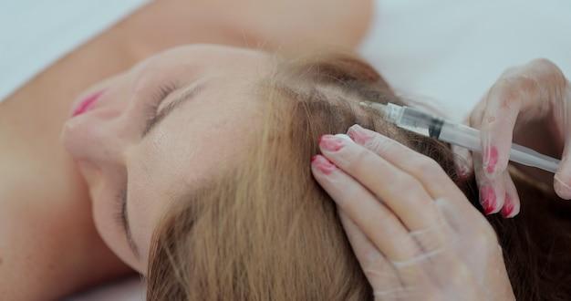 Mezoterapia na porost i wzmocnienie włosów w gabinecie kosmetycznym. lekarz robi zastrzyki w skórę głowy na porost włosów.