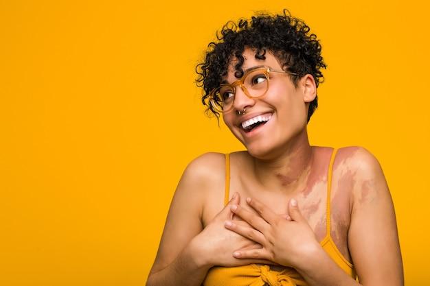 Młoda afroamerykanin kobieta ze znakiem urodzenia skóry, śmiejąc się, trzymając ręce na sercu, pojęcie szczęścia.