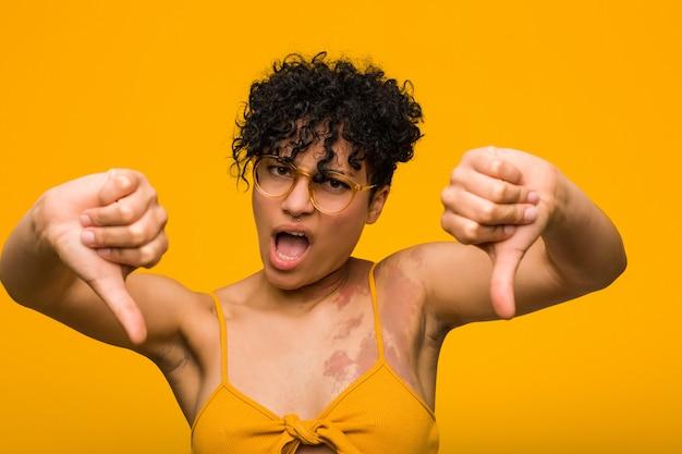 Młoda amerykanin afrykańskiego pochodzenia kobieta z skóra urodzinowym znakiem pokazuje kciuka puszek i wyraża niechęć.