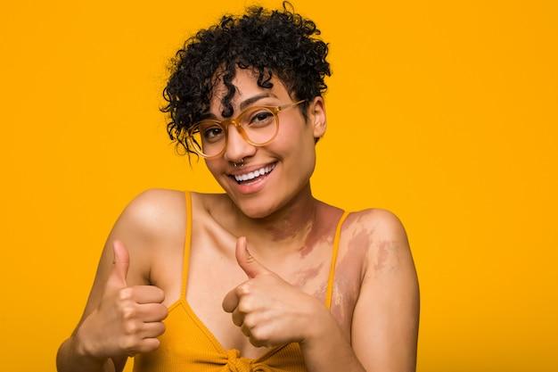 Młoda amerykanin afrykańskiego pochodzenia kobieta z znakiem urodzenia skóry podnosi oba aprobaty, uśmiechnięty i ufny.