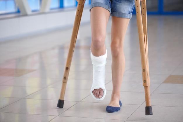 Młoda dziewczyna leży o kulach na korytarzu szpitala.