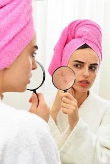 Młoda dziewczyna z problematyczną skórą, trzymająca lupę nad trądzikiem, patrząc w lustro