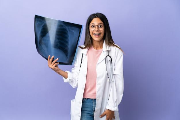 Młoda kobieta lekarz posiadający radiografię z wyrazem twarzy zaskoczenia