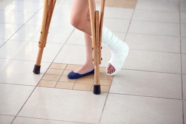Młoda kobieta leży o kulach na korytarzu szpitala.
