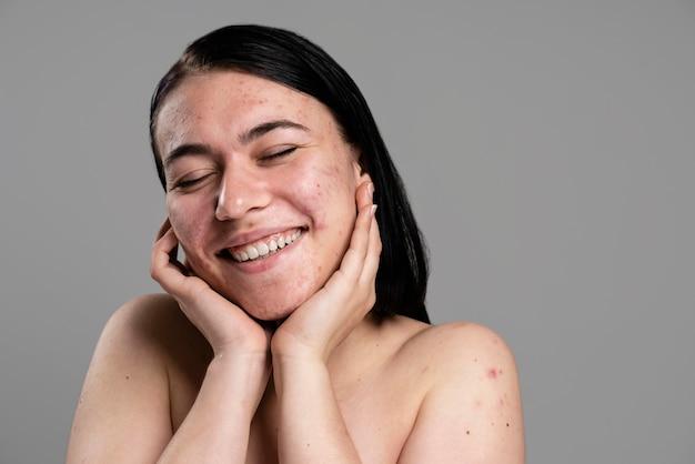 Młoda kobieta pokazuje jej trądzik z pewnością