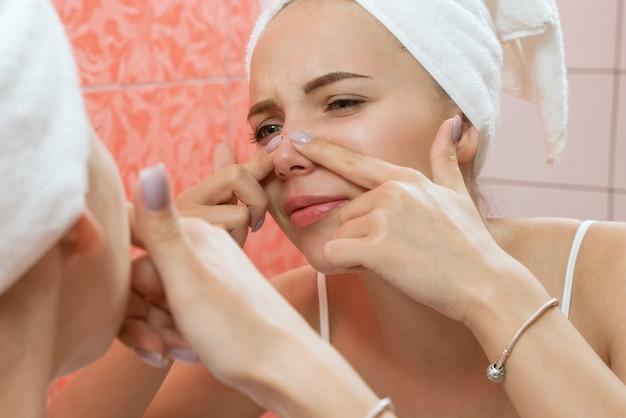 Młoda kobieta szuka i ściska trądzik na twarzy przed lustrem. brzydka problematyczna dziewczyna ze skórą, nastolatka mająca pryszcze. ochrona skóry. piękno