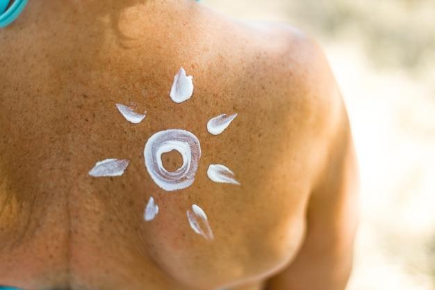 Młoda kobieta z balsamem do opalania w kształcie słońca na plecach na plaży.