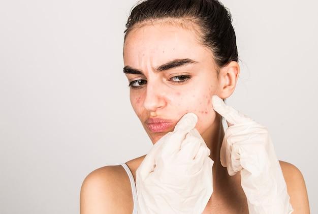 Młoda kobieta z trądzikiem na skórze twarzy