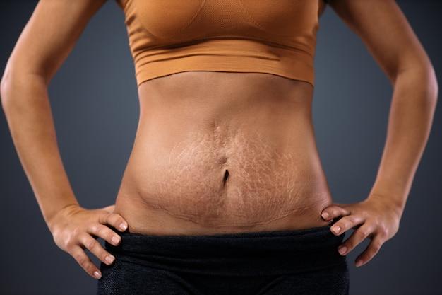 Młoda mama stoi z rękami na biodrach i pokazuje brzuch pełen rozstępów po ciąży.
