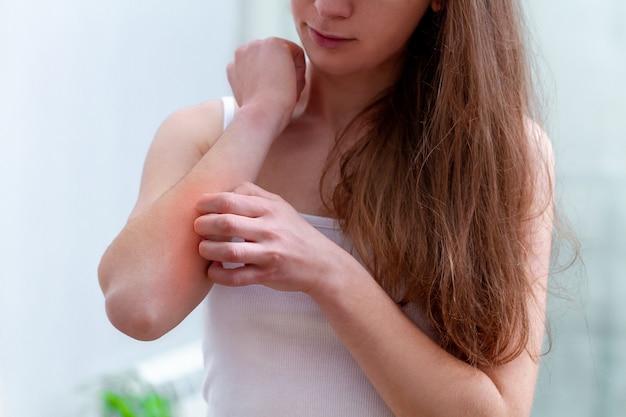 Młoda osoba cierpiąca na swędzenie skóry i drapanie swędzącego miejsca.