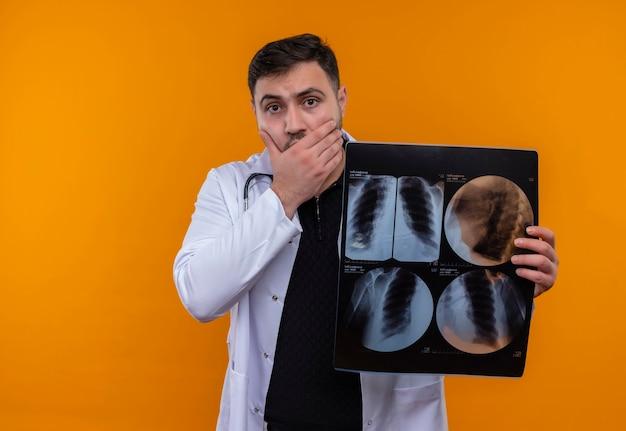 Młody brodaty mężczyzna lekarz ubrany w biały fartuch ze stetoskopem, trzymając prześwietlenie płuc w szoku obejmując usta ręką
