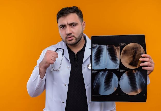 Młody brodaty mężczyzna lekarz ubrany w biały fartuch ze stetoskopem trzymający prześwietlenie płuc zaciskającą pięść patrząc na kamerę z poważną twarzą