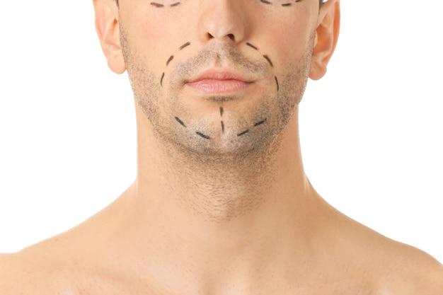 Młody człowiek ze śladami na twarzy, zbliżenie. koncepcja chirurgii plastycznej