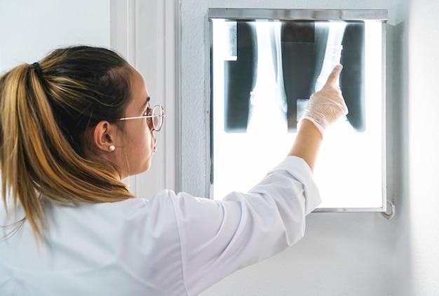 Młody lekarz badający nogę xray i wskazując jej część