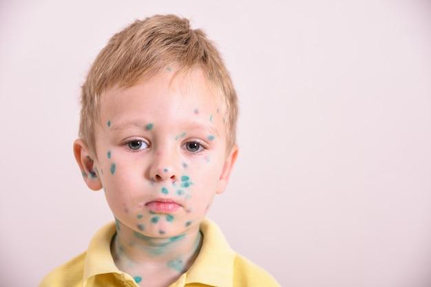 Młody maluch, chłopiec z ospą wietrzną. chore dziecko z ospą wietrzną. wirus ospy wietrznej lub wysypka pęcherzykowa ospy wietrznej na ciele i twarzy dziecka.
