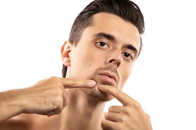 Młody mężczyzna ściska pryszcz na brodzie