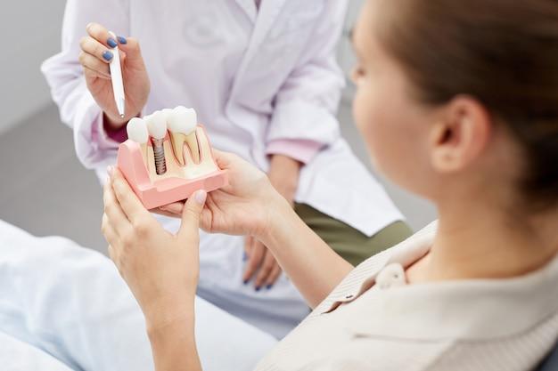 Model implantacji zęba