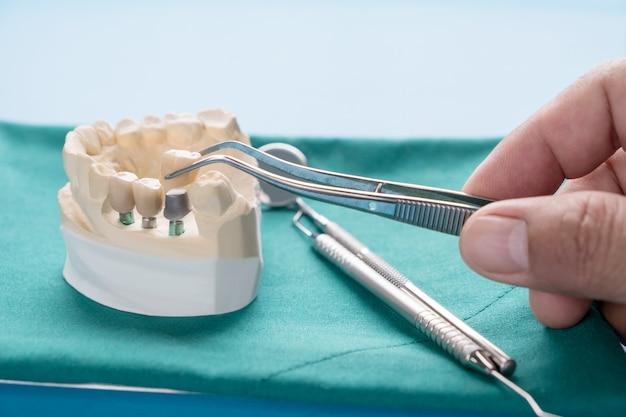 Model implantu implan mocuje implant mostowy i koronę.