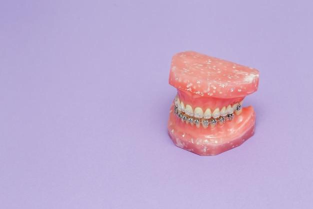 Model ludzkiej szczęki lub zębów z metalowymi opaskami na zęby