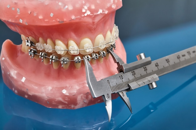 Model ludzkiej szczęki lub zębów z metalowymi ortopedycznymi aparatami ortodontycznymi